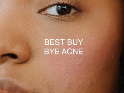 Best buy bye acne-1